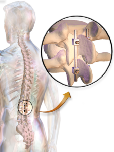 Lumbar Spinal Fusion Surgery