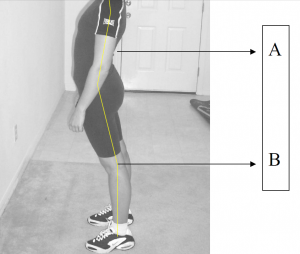 lordosis or swayback human spine anatomy