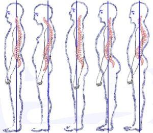 spine posture - proper posture
