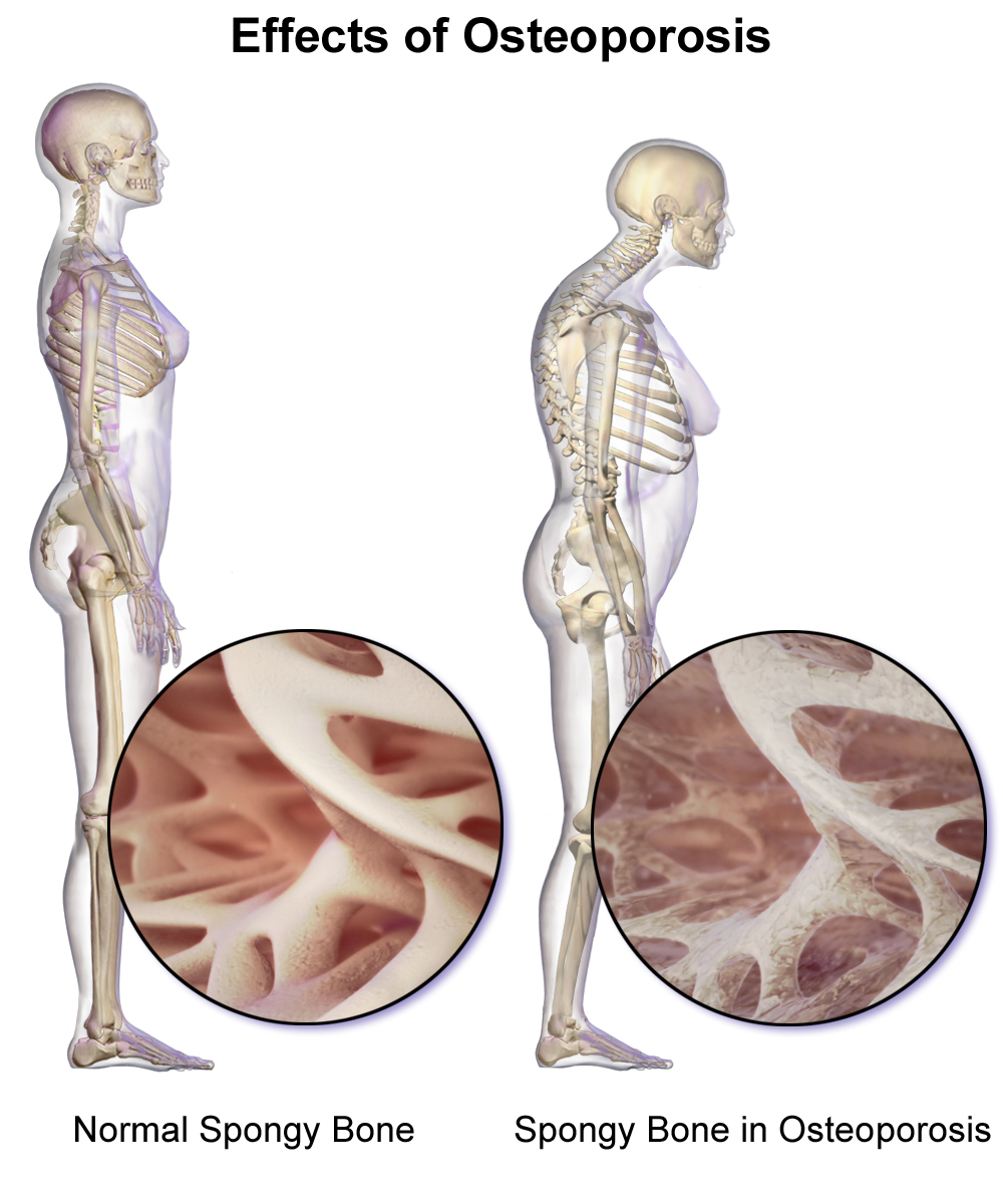 diagram of lower leg pain osteoporosis and the spine painful effects of this  osteoporosis and the spine painful effects of this